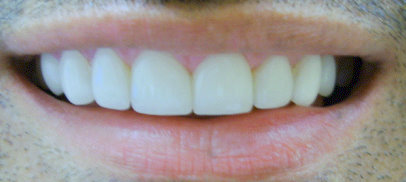 Picture of patient after veneer