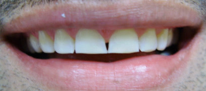 Picture of patient before veneer