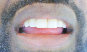 Picture of patient after veneers