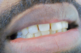 Picture of patient before veneers
