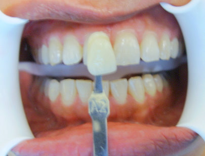 Picture of patient before whitening